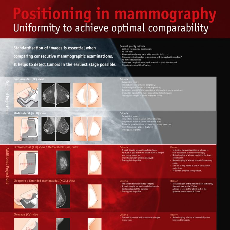 poster-positioning-in-mammography