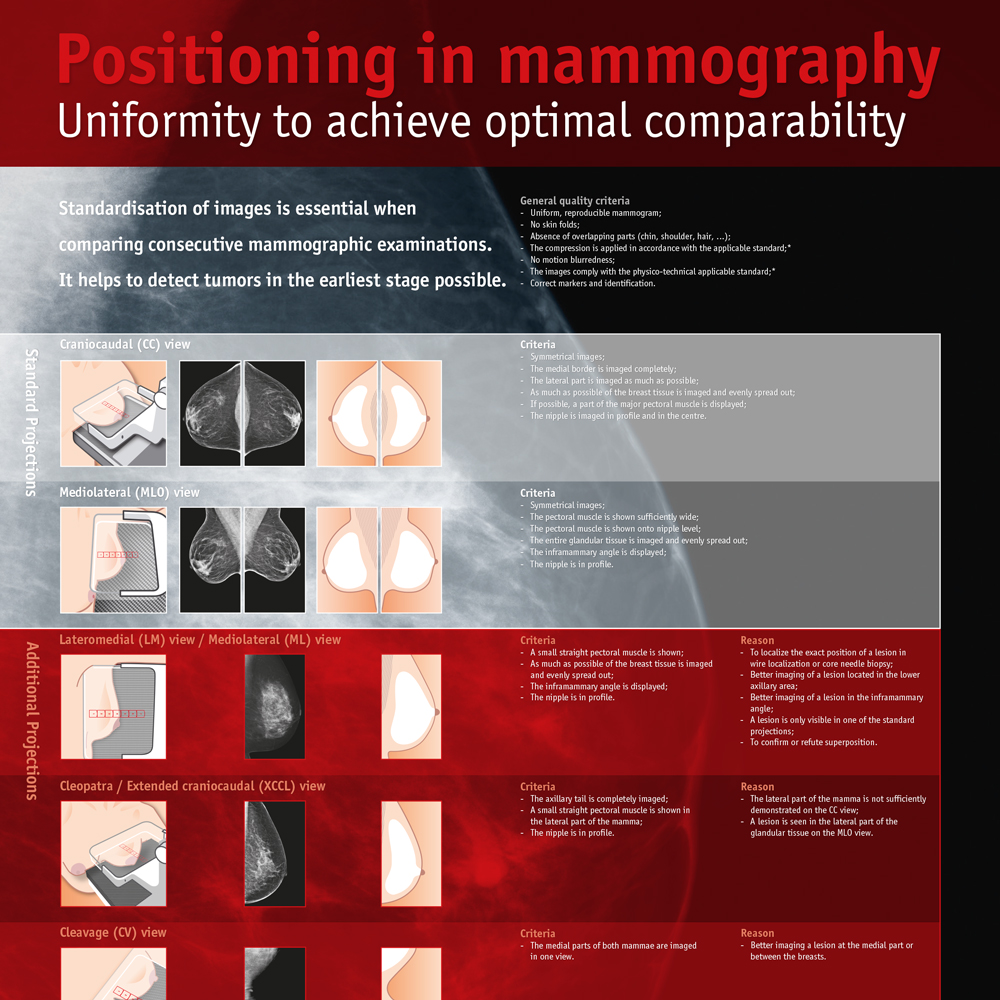 Poster Positioning In Mammography Uniformity To Achieve Optimal